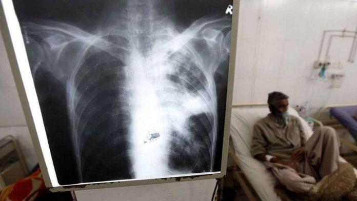 Una radiografía de los pulmones con un enfermo de tuberculosis detrás. EFE