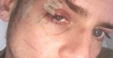 El exconcursante de Operación Triunfo Álex sufre una brutal agresión