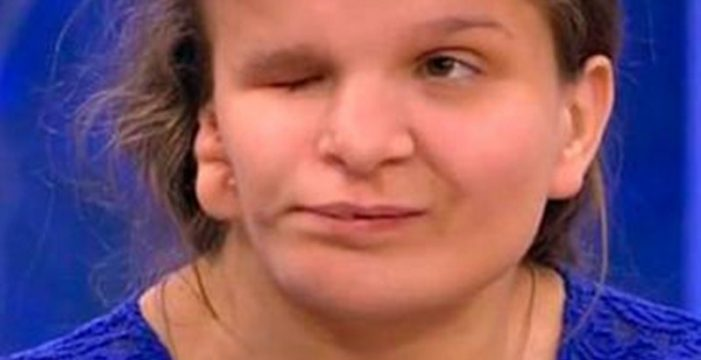 Niña abandonada quiere volver con sus padres pero muere durante una operación estética