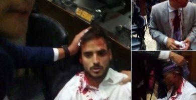 Varios diputados heridos en un ataque de chavistas contra el Parlamento venezolano