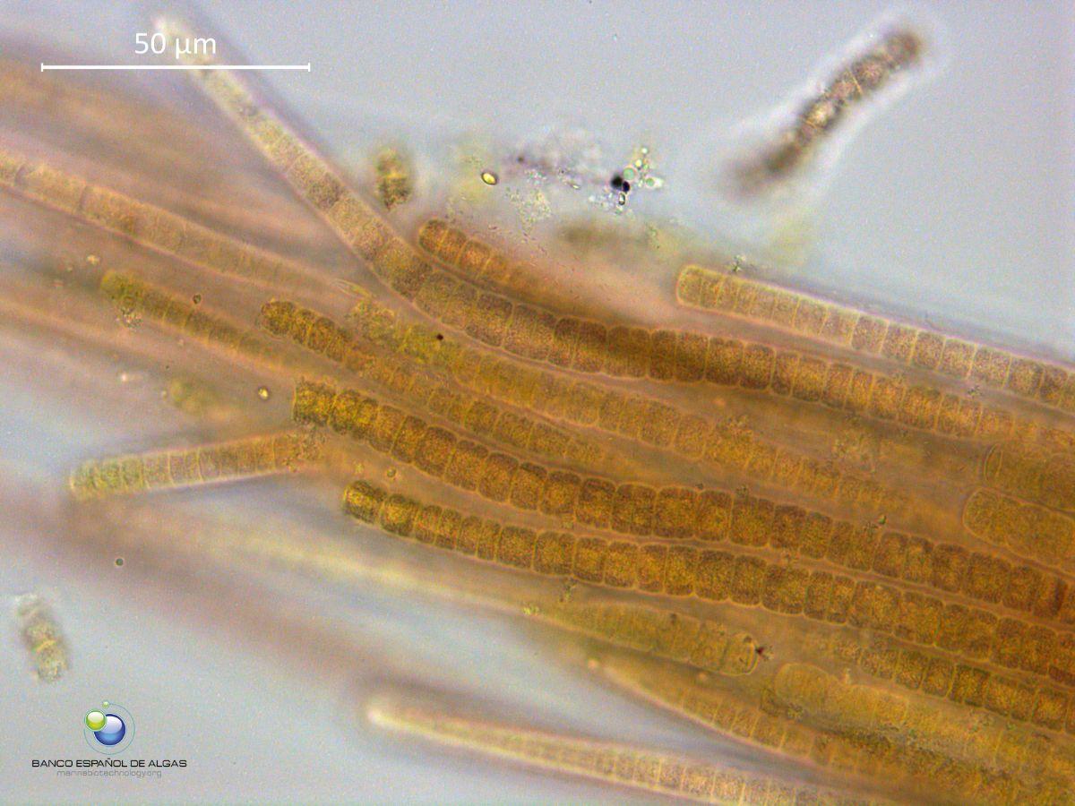 Imagen al microscopio de las cianobacterias que forman las manchas en zonas de las costas canarias. BEA