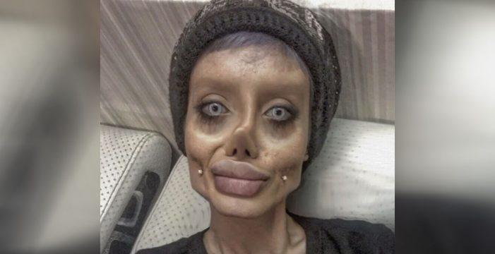 Así luce la joven iraní que se operó 50 veces el rostro para parecerse a Angelina Jolie