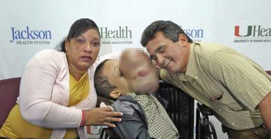 Fallece el niño al que acababan de extirparle un tumor facial de 4,5 kg en Miami