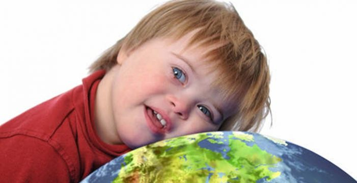 La bebida achocolatada tiene influencia en los niños con síndrome de Down