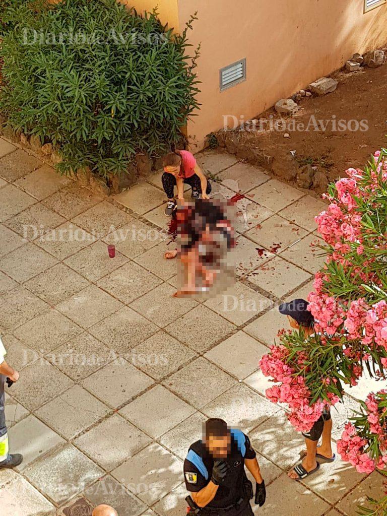 El joven acuchillado esta mañana en Arona no pudo sobrevivir a las heridas. | DA