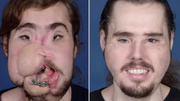 Una nueva vida para Cameron gracias a una complicada operación de reconstrucción facial