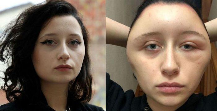Acaba con la cara deformada y a punto de morir por no seguir las instrucciones de un tinte de pelo