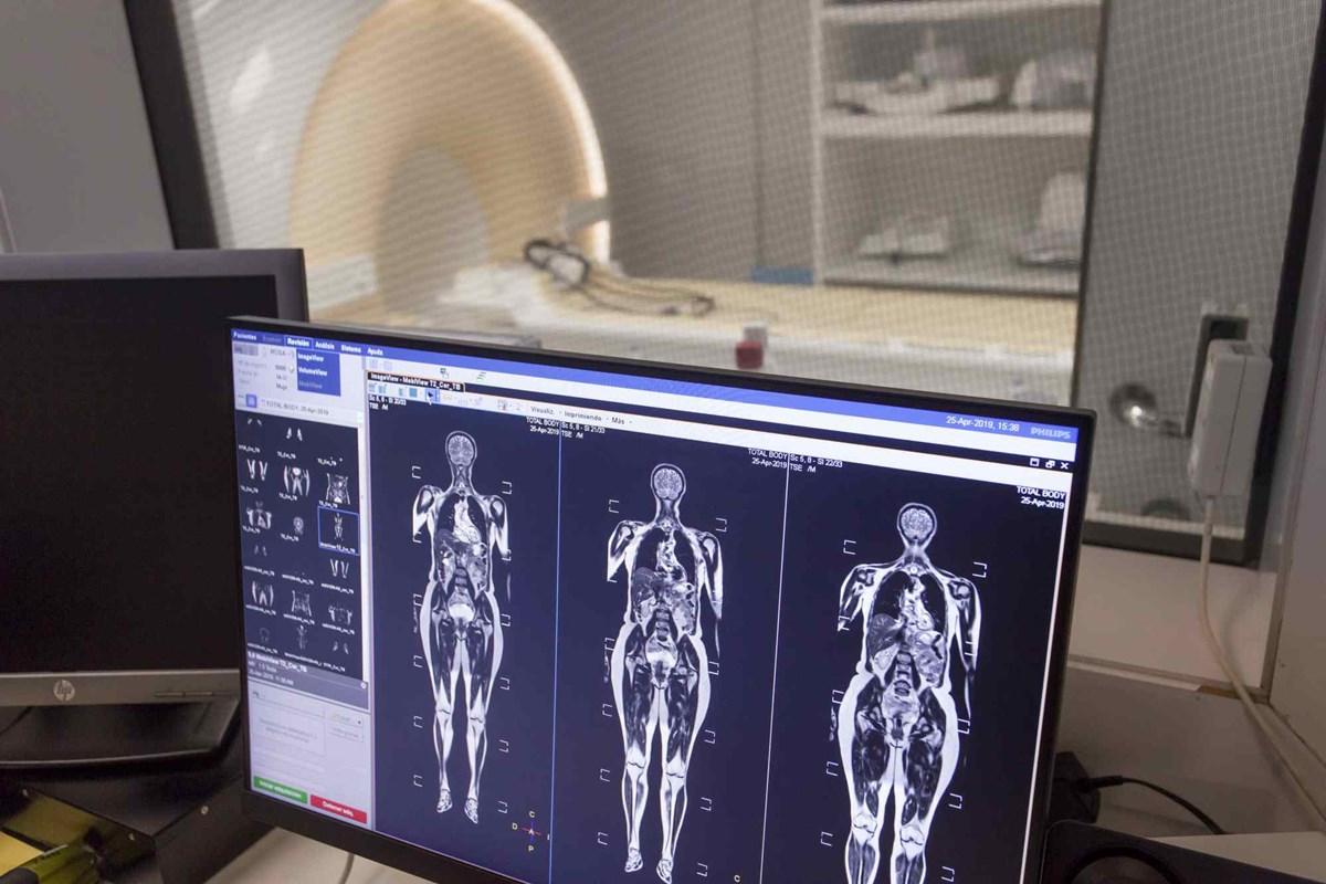 Hospiten incorpora las tres primeras resonancias magnéticas con bobinas digitales en Tenerife y Lanzarote
