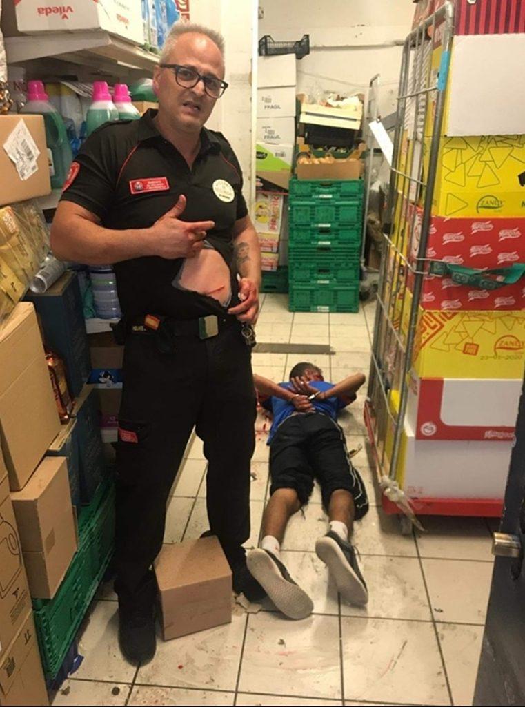 El vigilante de seguridad muestra la herida sufrida por la puñalada| DA