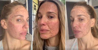 """Carola Baleztena muestra su rostro tras un tratamiento láser: """"Fijaos la barbaridad que tengo en la cara"""""""