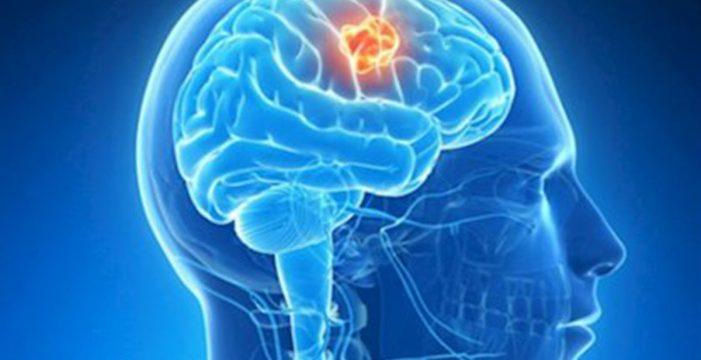 Investigadores españoles descubren cómo frenar el cáncer cerebral más letal