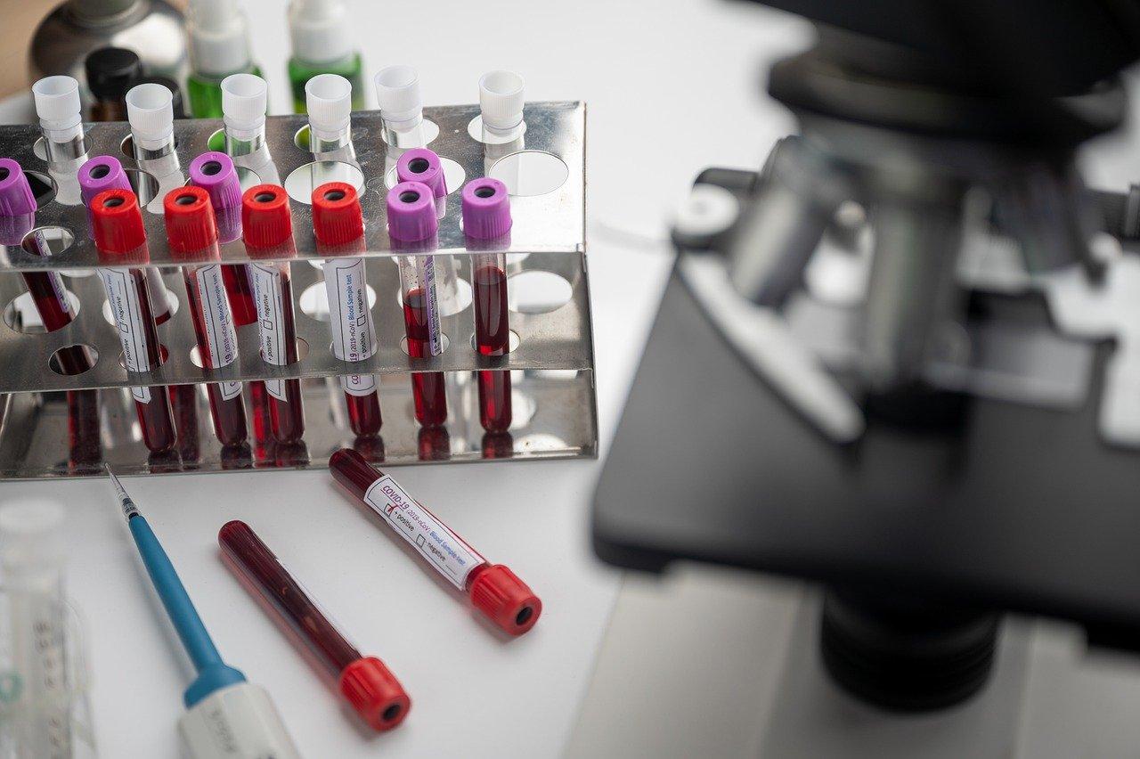 Desarrollan una vacuna eficaz en monos con sangre de un infectado español PIXABAY