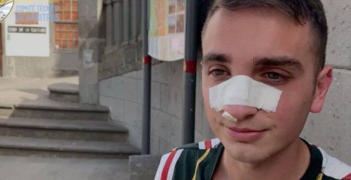 """Alejandro, el árbitro canario agredido en un partido: """"Me dio un cabezazo en la cara"""""""